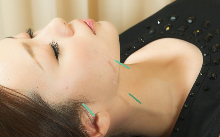 Acupuncture Plus Topical Herbs Facial Paralysis Recovery