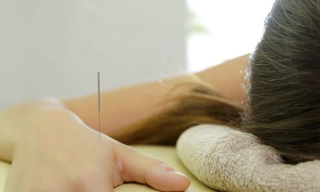 Acupuncture Migraine Relief Confirmed In Laboratory Investigation