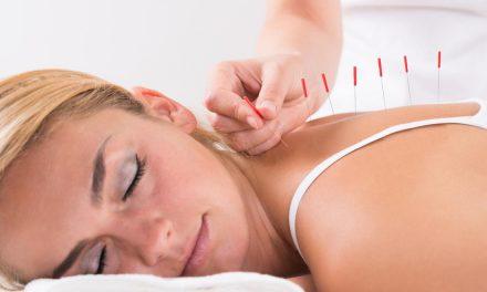 Anti-inflammatory Acupuncture