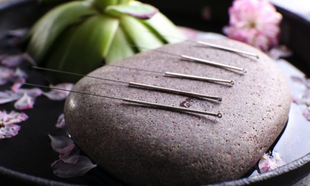 5 Ways Acupuncture Can Compliment Your Lifestyle