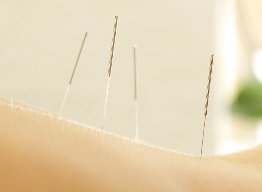 Acupuncture Peptic Ulcer Relief Confirmed