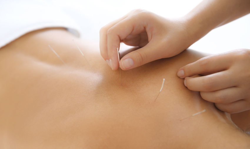 Acupuncture Top 3 Treatments