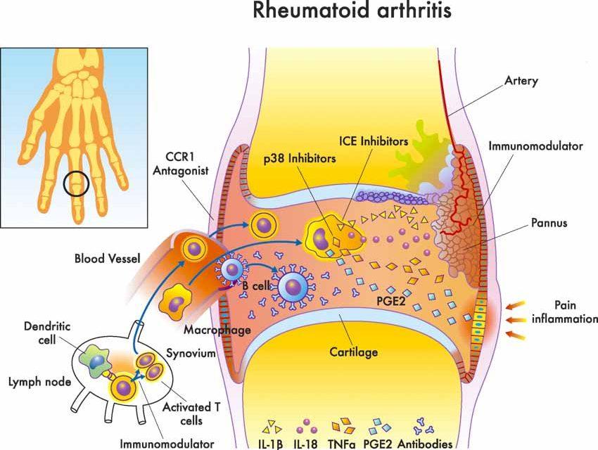 Acupuncture Alleviates Rheumatoid Arthritis Swelling And ...